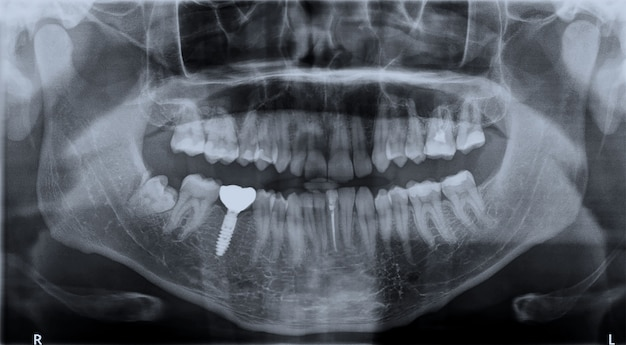 Mascella superiore e inferiore dei denti di roentgen