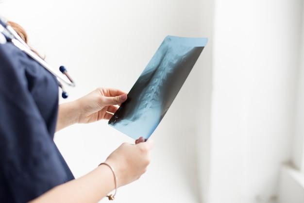 Medico che esamina la lastra radioscopica del torace del paziente all'ospedale su bianco, spazio della copia