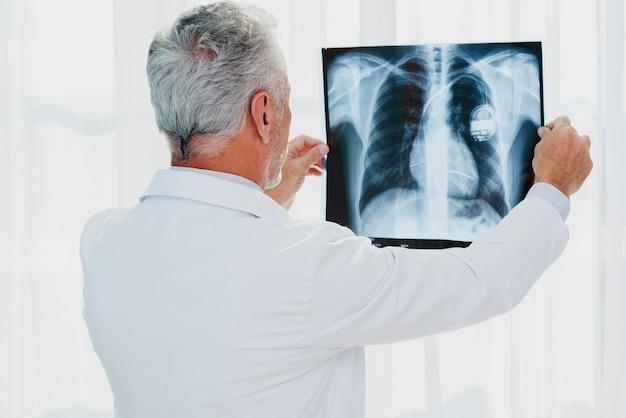 Medico che esamina la radiografia del torace