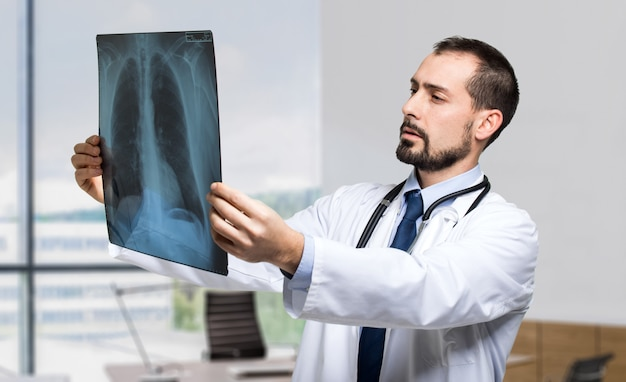 Medico che esamina una radiografia del torace