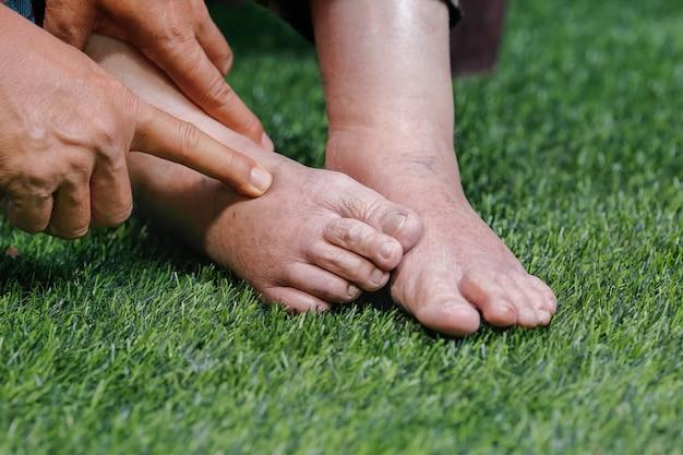 Medico che valuta una donna anziana con i piedi gonfi