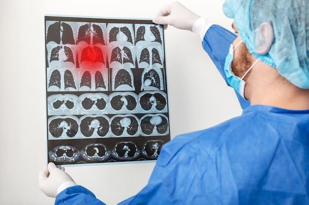 Medico chirurgo in uniforme protettiva controlla scansione polmoni. coronavirus covid-19, polmonite, tubercolosi, cancro ai polmoni, malattie respiratorie. concetto di medicina e assistenza sanitaria