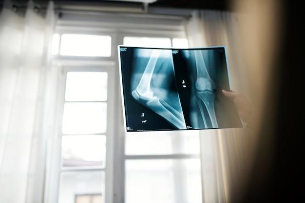 Medico con un film a raggi x del paziente
