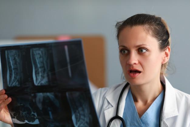 Medico emozionante della donna che tiene il film di raggi x a disposizione