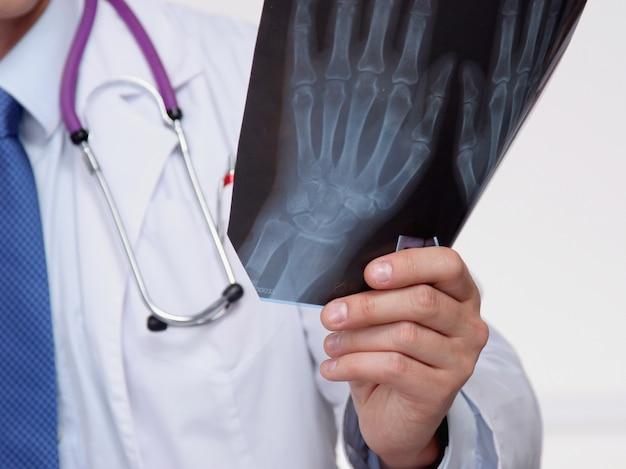 Medico in uniforme blu che tiene i raggi x