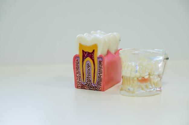 Modello di denti bianchi e modello di dente senza carie su sfondo bianco.