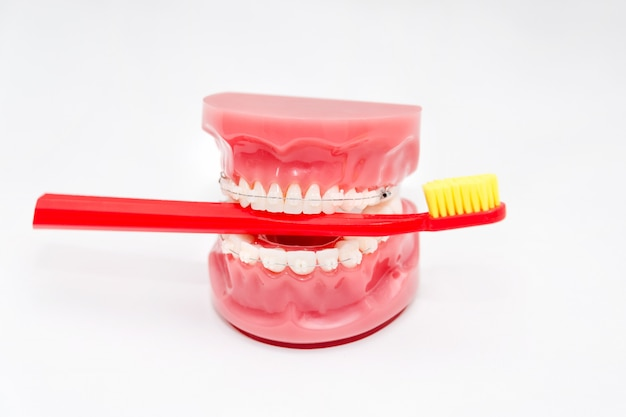Modello di denti con bretelle in ceramica e spazzolino da denti