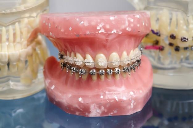 Modello di mascella o denti umani con apparecchi ortodontici cablati in metallo