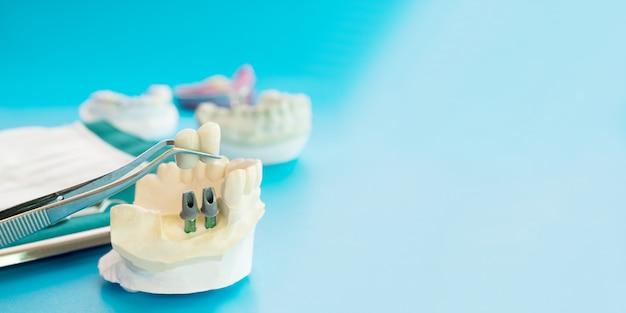 Modello implan supporto denti fissi ponte implan e corona.