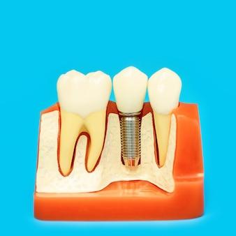 Modello medico della mascella con denti falsi su un perno sul blu