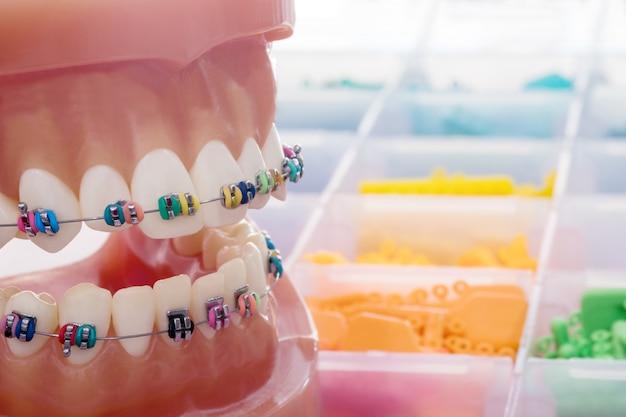 Modello ortodontico da vicino - modello di dimostrazione dei denti delle varianti della staffa ortodontica o del tutore