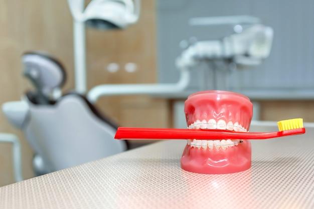 Modello ortodontico e strumento del dentista - modello dei denti con i ganci ceramici su un primo piano artificiale delle mascelle. modello a mascella con spazzolino rosso. odontoiatria, medicina, attrezzature mediche e concetto di stomatologia