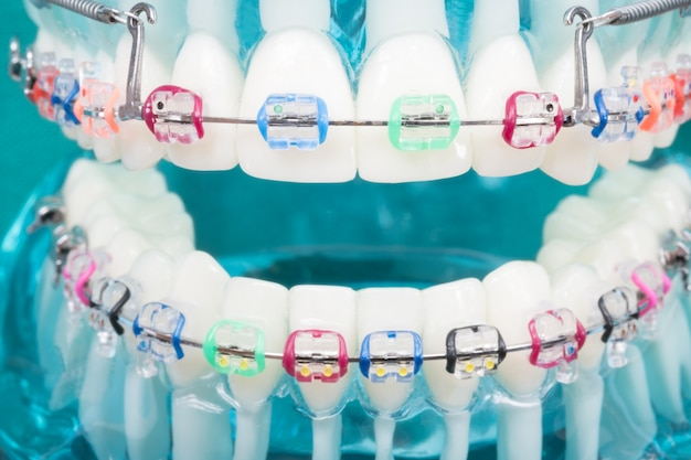 Modello ortodontico e strumento dentista - modello di denti dimostrativi delle varietà di ortodonzia