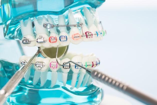 Modello ortodontico e strumento dentista - modello di denti dimostrativi di varietà di ortodonzia