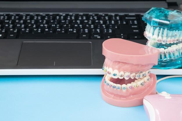 Modello ortodontico e strumento dentista - modello di denti dimostrativi di varietà