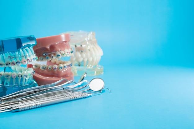 Modello ortodontico e strumento dentista