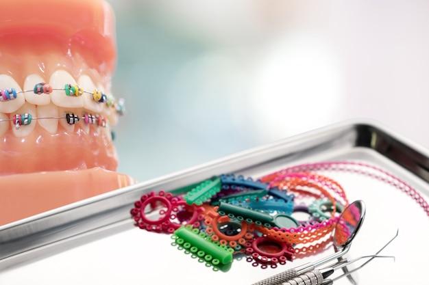 Modello ortodontico e strumento per dentista - modello di denti dimostrativi delle varianti della staffa ortodontica o del tutore