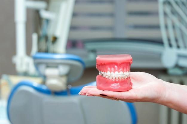 Modello ortodontico e strumento per dentista - modello dimostrativo di denti di varietà di staffa ortodontica o tutore. ganci di metallo e ceramica sui denti su mascelle artificiali in primo piano femminile della mano