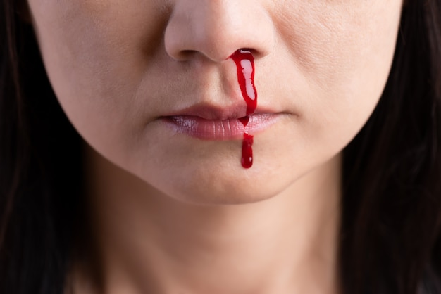 Nosebleed, donna con un naso sanguinante. assistenza sanitaria .