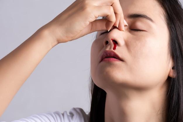 Nosebleed, donna con un naso sanguinante. sanità e medicina