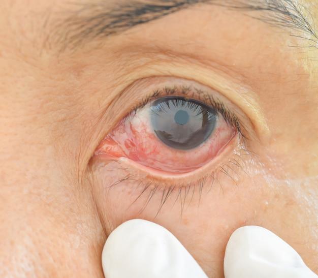 Occhi con allergie chimiche