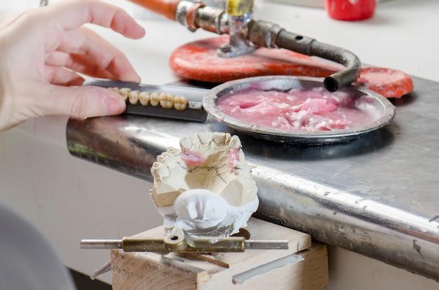 Odontotecnico facendo protesi parziali di resine acriliche.