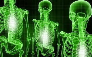 Ossa scheletriche