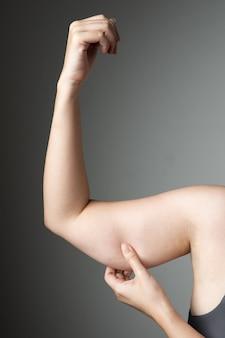 Pancia di braccio cellulite donna grassa malsana