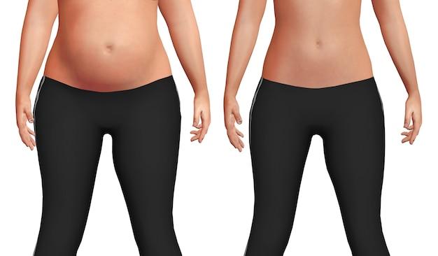Pancia femminile prima dopo il processo di perdita di peso con perdita di grasso corporeo sfondo bianco.