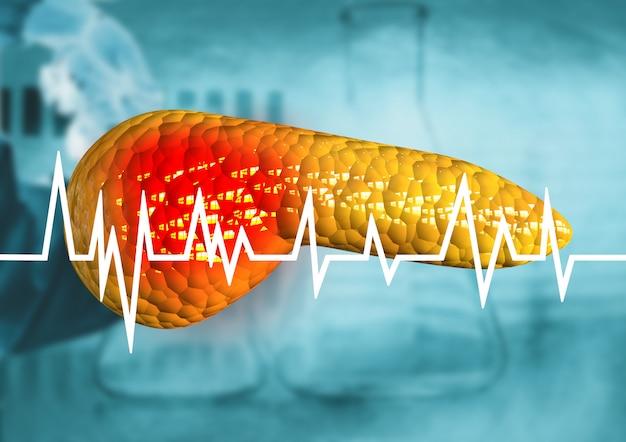 Pancreas, organo del corpo umano con diagnosi di cancro, pancreatite, malattie gravi