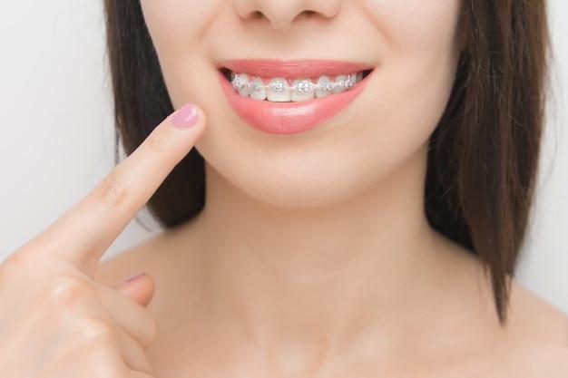 Parentesi graffe dentali nella bocca della donna felice che mostra con un dito sulle staffe sui denti dopo lo sbiancamento. staffe autoleganti con fascette metalliche ed elastici grigi o elastici per un sorriso perfetto