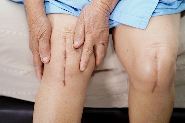 Paziente donna senior mostra le sue cicatrici sostituzione chirurgica totale dell'articolazione del ginocchio.