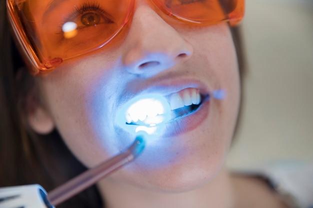 Paziente femminile con i vetri protettivi di sicurezza che passano attraverso i denti del laser che imbiancano nella clinica