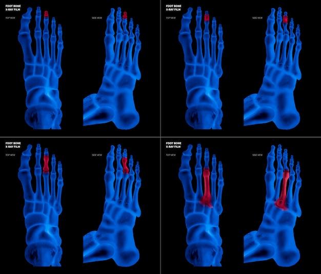 Pellicola blu a raggi x con l'osso del piede del piede medio con riflessi rossi su diverse zone del dolore e delle articolazioni