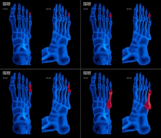 Pellicola blu a raggi x con l'osso del piede piccolo con riflessi rossi su diverse zone del dolore e delle articolazioni