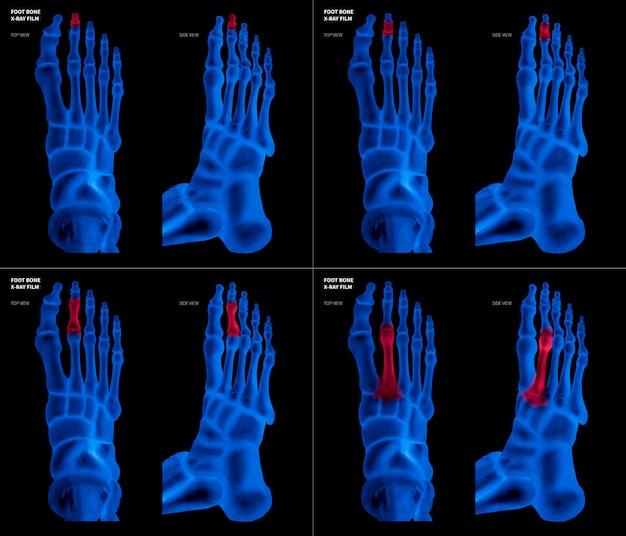 Pellicola blu a raggi x di osso del piede lungo con riflessi rossi su diverse zone di dolore e articolazione