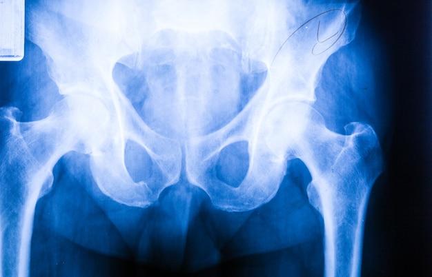 Pellicola fotografica umana a raggi x con caviglia e ginocchio