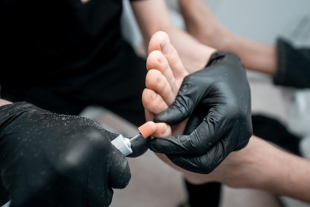 Podologia, trattamento delle aree danneggiate del piede