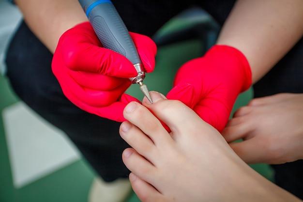 Podologo che tratta il fungo dell'unghia del piede. trattamento podologico