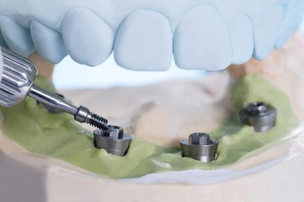Primo piano / componenti del moncone convertibile / moncone provvisorio per impianto dentale / vite del moncone.