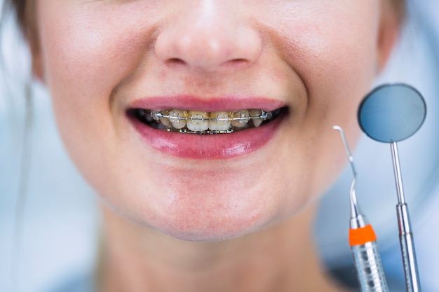 Primo piano dei denti di una donna con le parentesi graffe