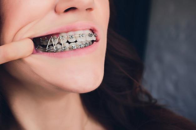 Primo piano della donna che indossa elastico ortodontico