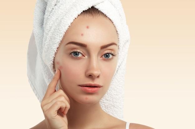 Primo piano della giovane donna con un asciugamano sulla testa e brufoli sul viso