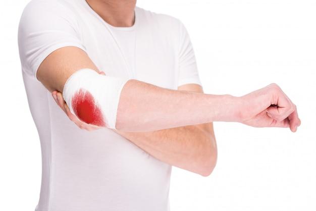 Primo piano della mano dell'uomo, ferito al gomito doloroso.