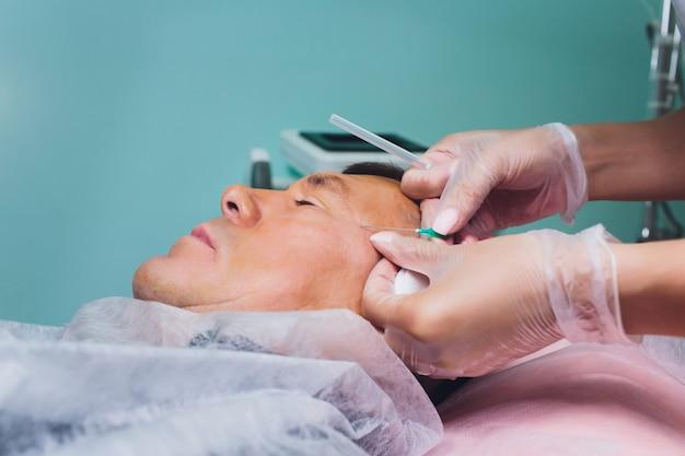 Primo piano della procedura per il lifting facciale dop sutura, chirurgia lifting del viso. tecnica innovativa di new thread lift, novathreads e silhouette instalift borse da uomo sotto gli occhi.