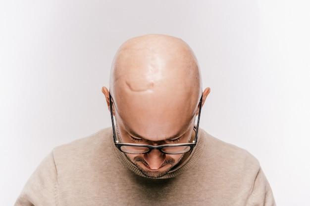 Primo piano della testa calva del maschio dopo l'operazione di oncologia. irradiazione del tumore al cervello e segni di chemioterapia. paziente sopravvissuto dopo il cancro. uomo senza peli con cicatrici. irritazione della pelle. operazione neurochirurgica