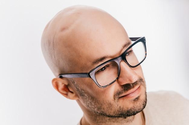 Primo piano della testa calva del maschio dopo l'operazione di oncologia