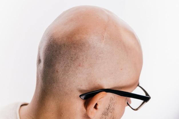 Primo piano della testa calva del maschio dopo l'operazione di oncologia.