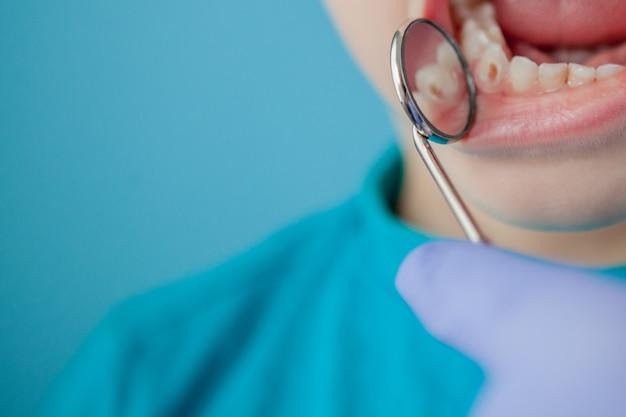 Primo piano delle mani del dentista con assistente in guanti blu stanno trattando i denti a un bambino, il viso del paziente è chiuso