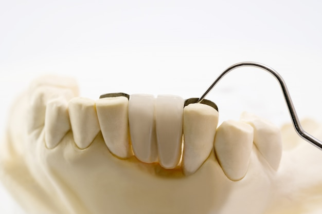 Primo piano dental maryland bridge corona e ponte attrezzature e modello express fix restauro.